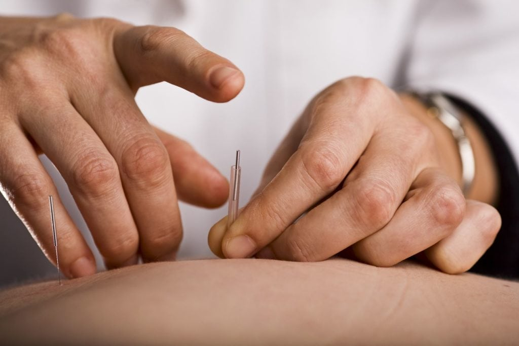 Practitioner applying acupuncture needles to a patients back